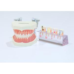 フリー写真, 模型, 歯, 歯型模型, 虫歯, デンタルケア, 医療