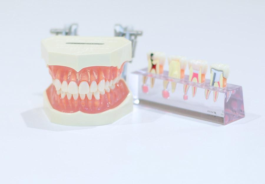 フリー写真 歯型模型