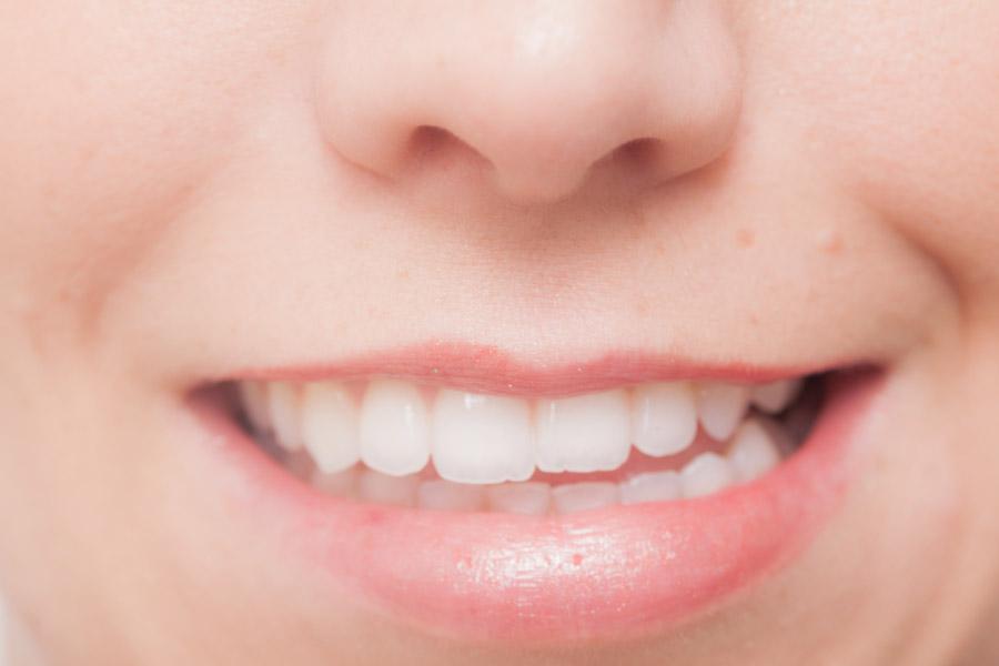フリー写真 女性の口元と歯