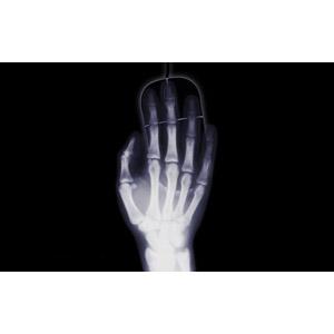 フリーイラスト, 人体, 手, 骨, マウス, レントゲン, 黒背景