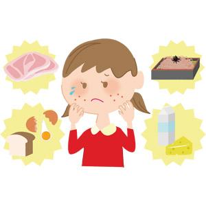フリーイラスト, ベクター画像, AI, 人物, 子供, 女の子, アレルギー, 医療, 病気, 食肉, 卵(タマゴ), 食べ物(食料), 食パン, 蕎麦(ソバ), ざるそば(もりそば), 乳製品, チーズ, 牛乳(ミルク)