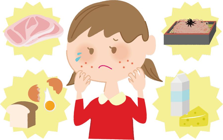 フリーイラスト 食物アレルギーの女の子